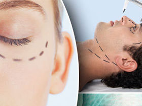 Cosmetic Surgery India,Top Cosmetic Surgeons India